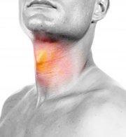 Воспаление в горле