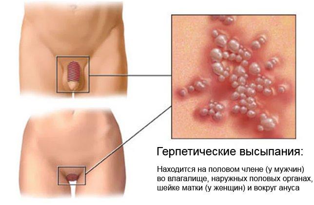 Герпетические высыпания. Признак генитального герпеса