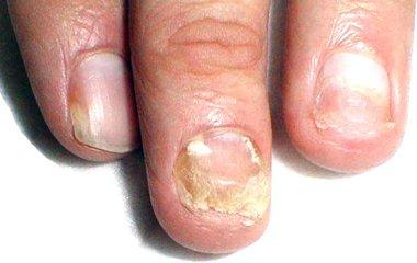 Средство от грибка на ногтях ног