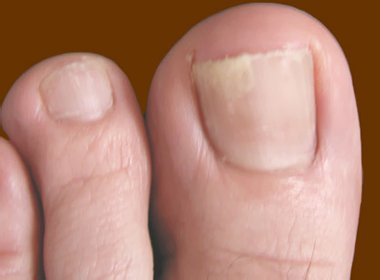 Грибок ноктя на ногах