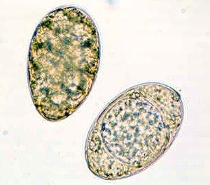 Яйца Diphillobothrium latum